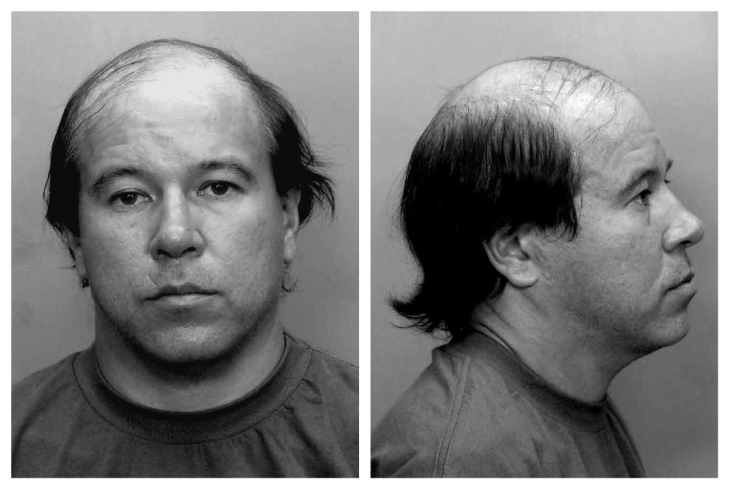 Gilkey's mug shot after being arrested in Florida in 2010.